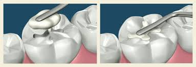 Tooth Colored Fillings in Maple, Ontario